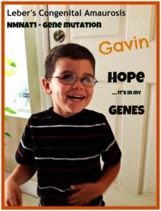 Leber's Congenital Amaurosis - Gavin